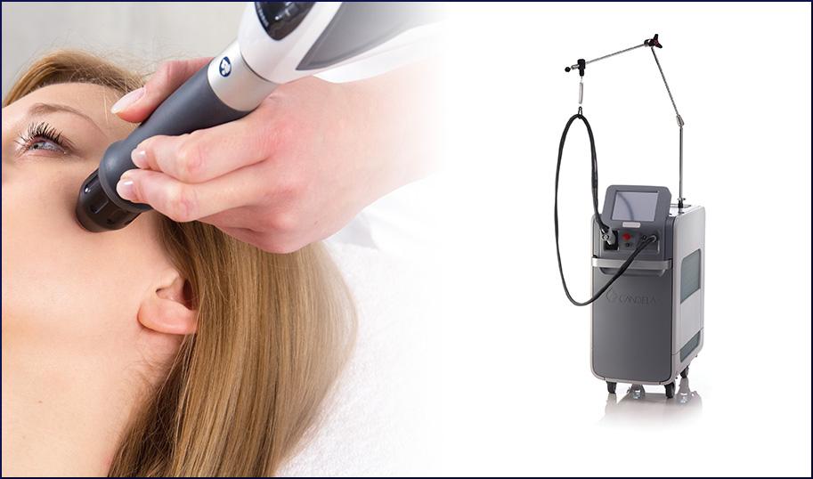 ジェントルマックスProレーザーによる治療の画像