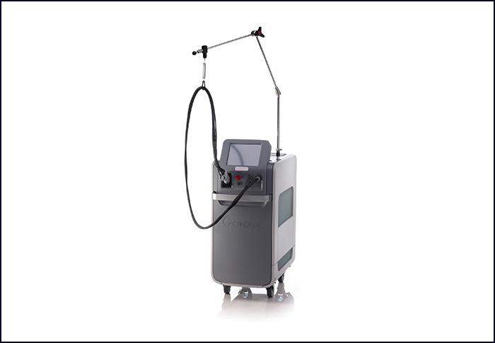 レーザーの機械の画像