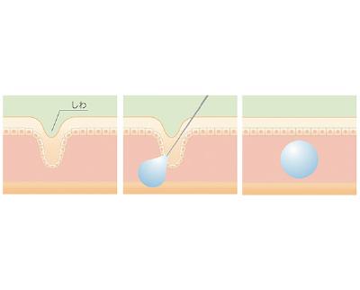 ヒアルロン酸のしわへの作用機序