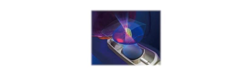 高密度焦点式超音波治療法HIFU(High Intensity Focused Ultrasound; ハイフ)の照射イメージ
