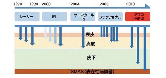 高密度焦点式超音波治療法HIFU(High Intensity Focused Ultrasound; ハイフ)が働きかけるSMAS層と皮膚の関係