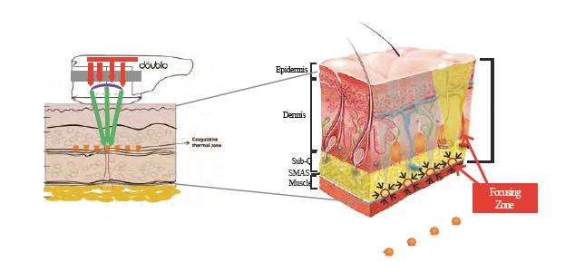 高密度焦点式超音波治療法HIFU(High Intensity Focused Ultrasound; ハイフ)が働きかけるSMAS層の断面イメージ